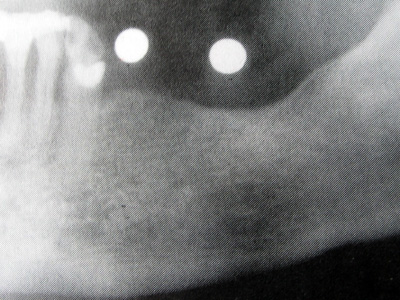 implants_2_t2_03_l