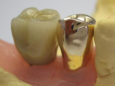 implants_3_t5_05_l
